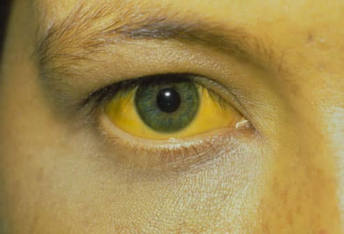 image of patient with hepatitis c symptom jaundice